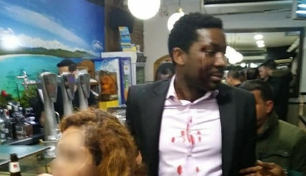 Actor africano fue víctima de una agresión racista en bar de Madrid